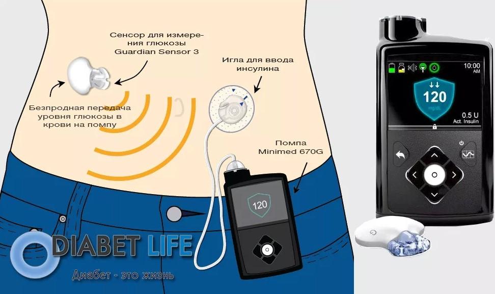 Фото инсулиновой помпы, как подключить к организму больного сахарным диабетом.